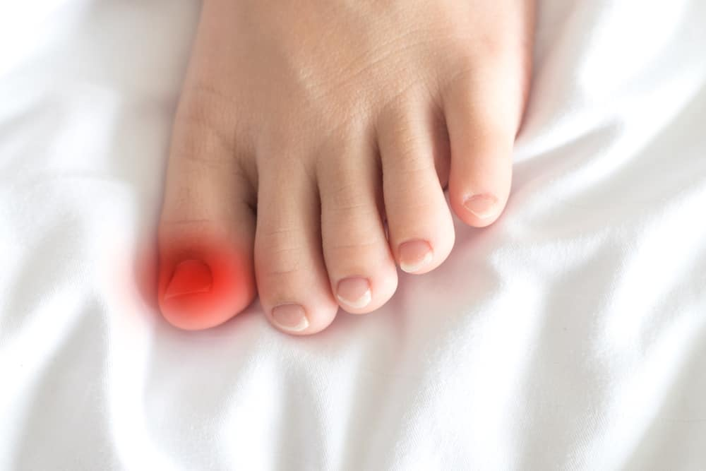 Foot of female Asia young adult with red spot on thumb