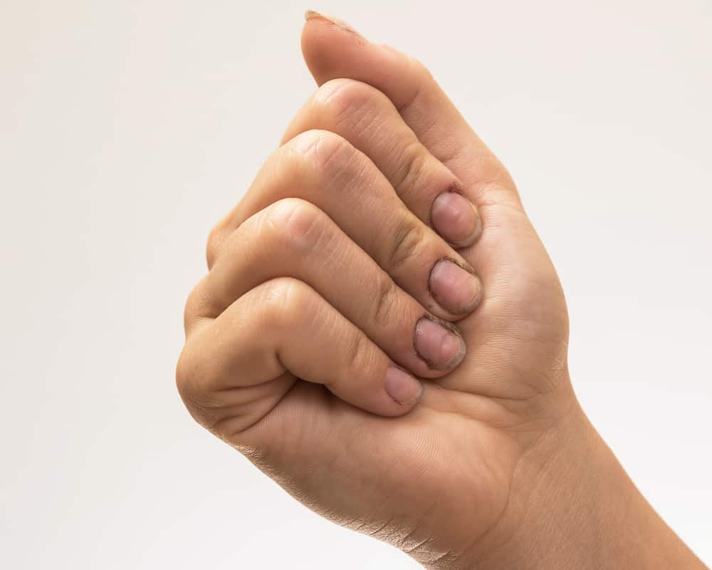 Female hands with dirty nails