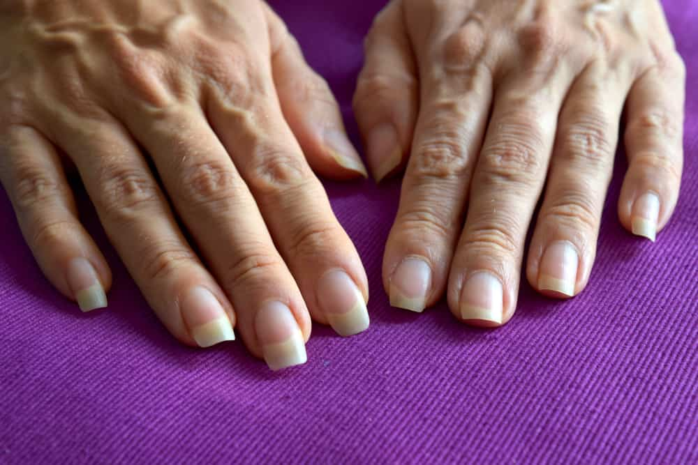 Female hands with ugly veins and different size nails on purple background